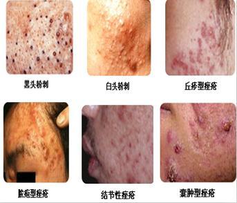 皮肤结构完全被破坏