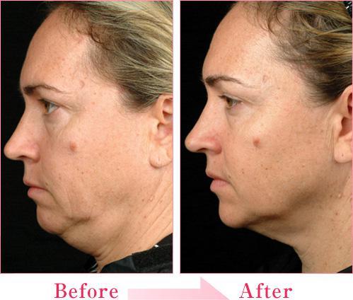 深层除皱是根据面部皮肤的生理解剖层次进行逐层提升